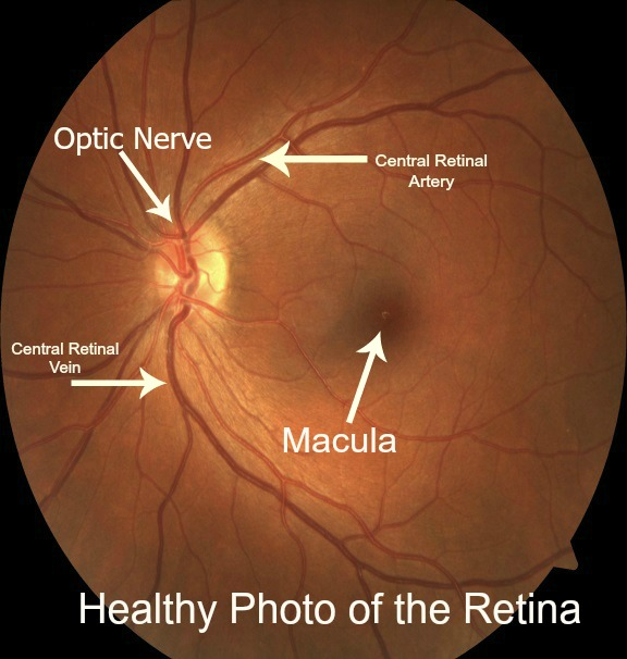 Healthy Retinal Photo